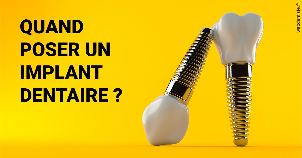https://selarl-saxe-lafayette.chirurgiens-dentistes.fr/Les implants 2
