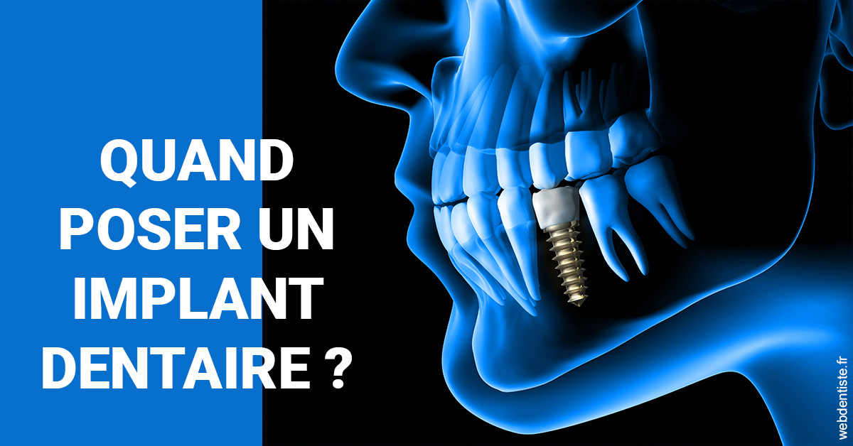 https://selarl-saxe-lafayette.chirurgiens-dentistes.fr/Les implants 1
